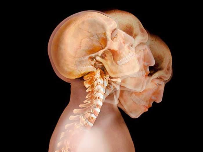 השתקפות גוף האדם מתחת לבגדים, הבשר והשרירים